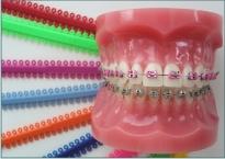 Ատամների կծվածքի ուղղում