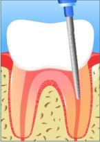 ատամների բուժումը