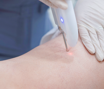 enlarged vessels laser treatment  avanta aesthetic