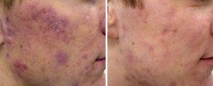 Лазерное лечение акне и рубцов 1