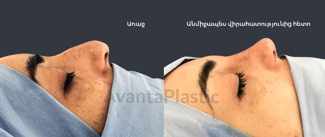 rhinoplasty-before-after-arm